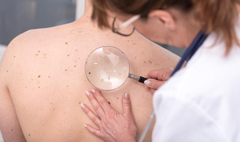 Remboursement dermatologue